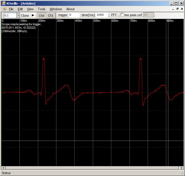 heartbeat4